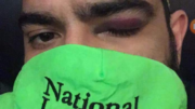 Danny Garza shows his injury from a rubber bullet